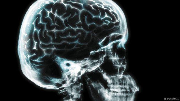 Чтобы проникнуть внутрь чужой головы, не нужно делать рентгеновский снимок