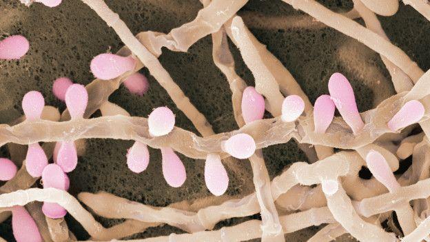 Hongo Trichophyton Rubrum. Photo cortesía del museo Micropia, Photo ANP.