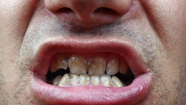 Boca con dientes manchados