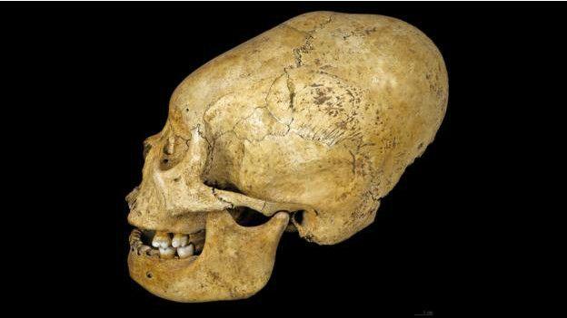 Cráneo deformado de Perú