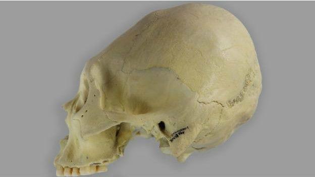 Un cráneo deformado de Patagonia