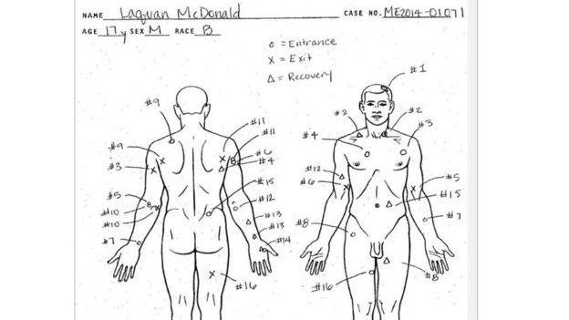 Autopsia de McDonald