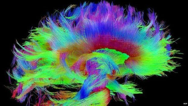 Sistema del cerebro humano
