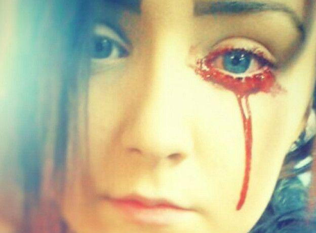Sangrado ojos