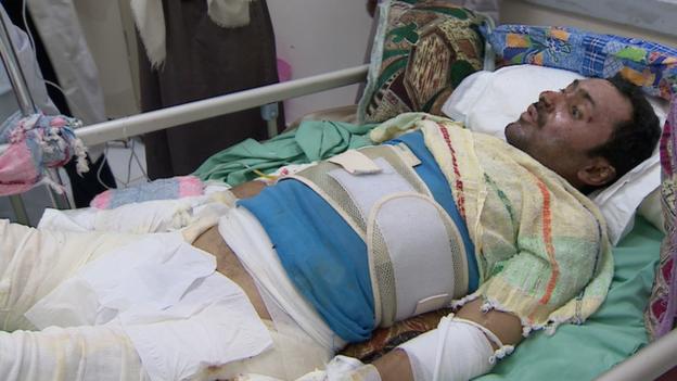 Abdel Bari Omar, víctima de la guerra en Yemen