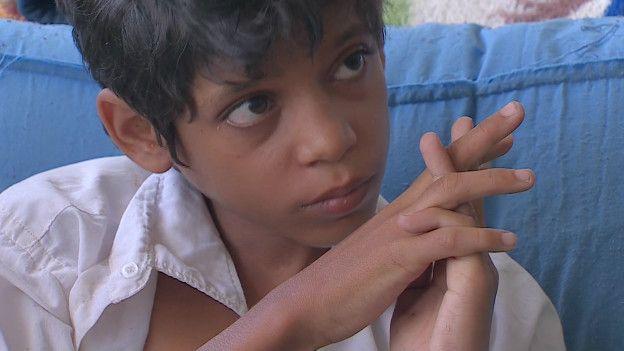 Mohammed, víctima de la guerra en Yemen