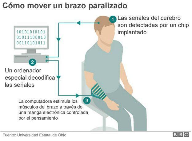 Infograma sobre cómo mover un brazo paralizado