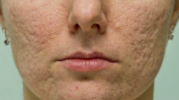 trenbolone acne