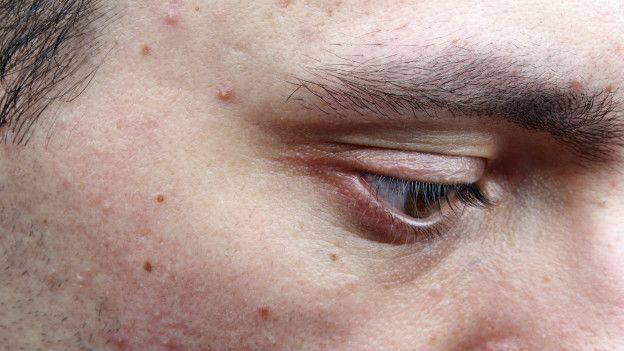 un hombre con acne