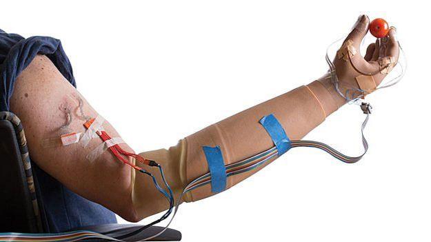 Igor Spetic perdeu a mão em um acidente há quatro anos e recebeu a prótese biônica