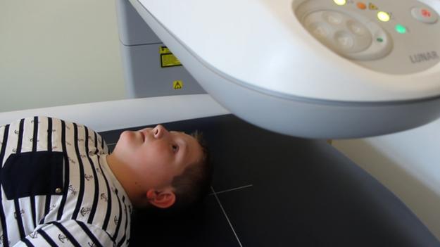 A Jakob lo escanearon para conocer su índice de masa corporal.