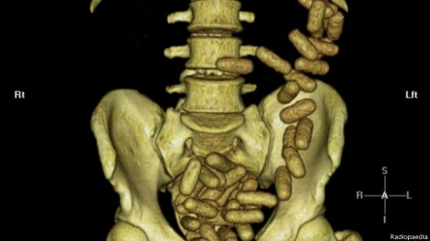 Las inusuales imágenes de rayos X