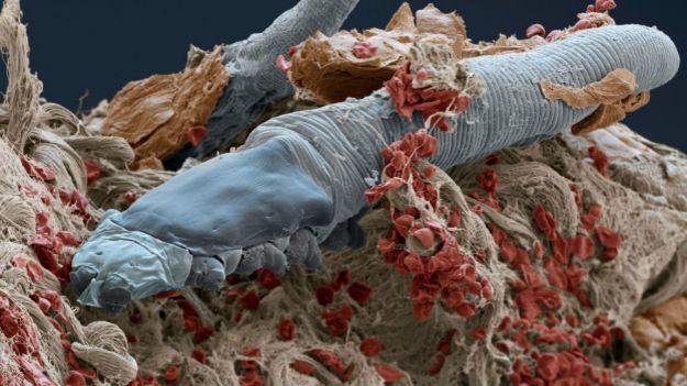 DERGİ - Yüzümüzde yaşayan kurtçuklar