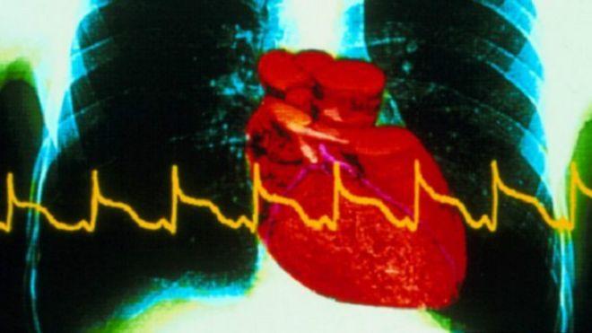 اختبار جديد لتشخيص الأزمات القلبية 150121055547_heart_a