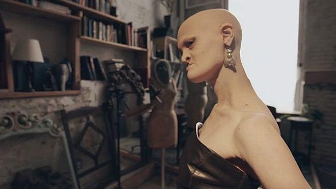 La modelo Melanie Goydos, que nació con una mutación genética llamada displasia ectodérmica,