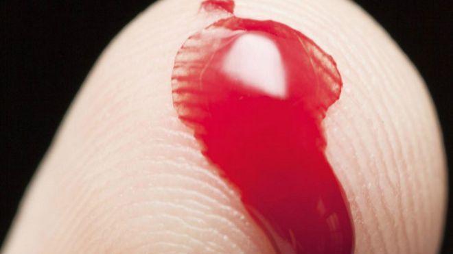 Кровь из влагалища у девственницы