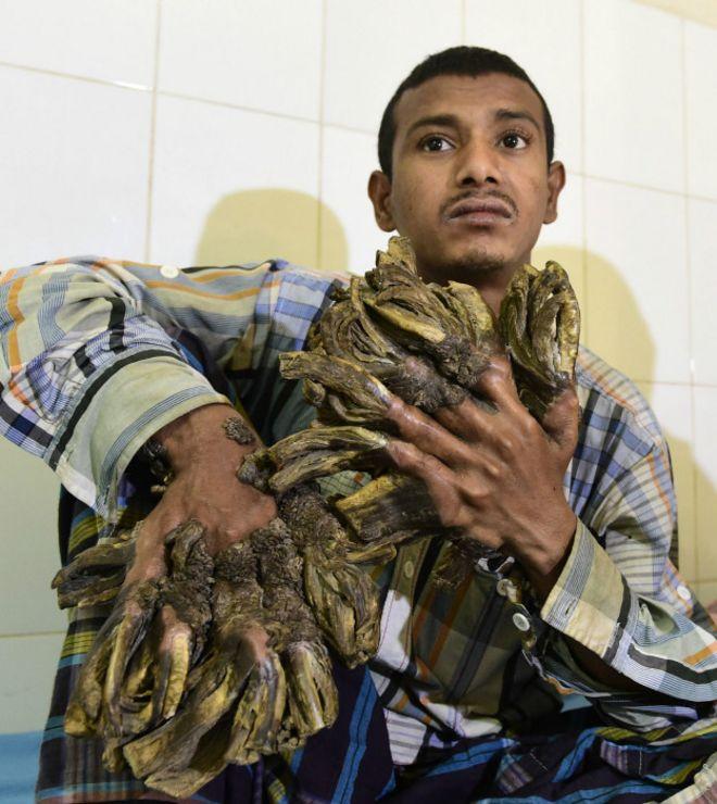 La extraña enfermedad del ''hombre-árbol'' de Bangladesh