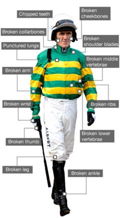 AP McCoy's injuries - broken leg, thumb, wrist, arm, collarbones, shoulder blades, middle and lower vertebrae, chipped teeth, punctured lungs
