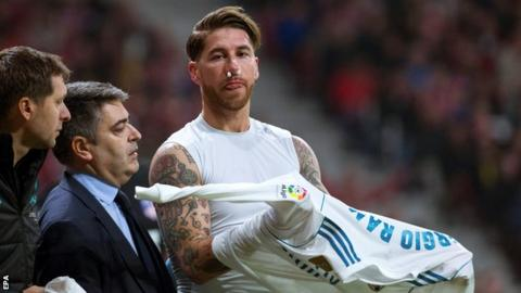 Real Madrid captain Sergio Ramos faces spell out with broken nose
