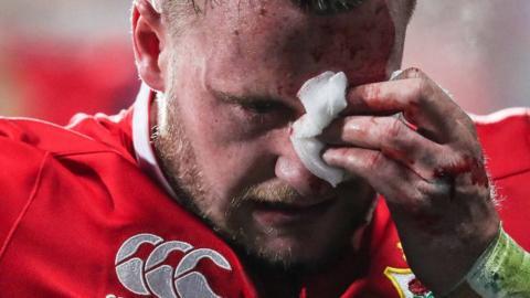 Stuart Hogg is having a cheek injury assessed