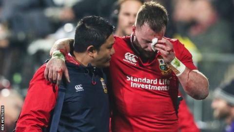 Stuart Hogg lasted just 20 minutes against the Crusaders