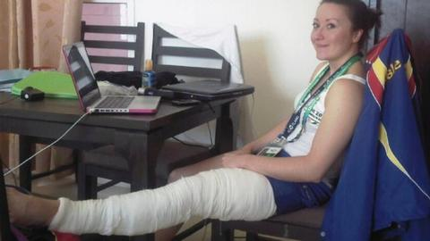 Olivia Curran with her leg in plaster