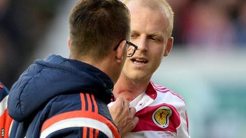 Steven Naismith shows the cuts he suffered against Qatar