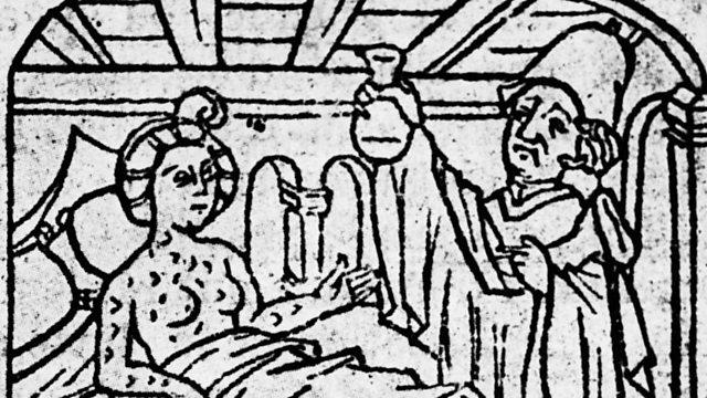 A Cultural History of Syphilis - BBC