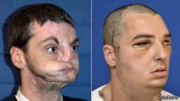 El antes y el después de la intervención.
