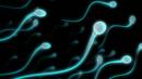 Sperm count (Credit: Copyright: Science Photo Library)