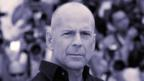Are bald men more virile?