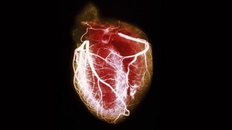 Heart (SPL)