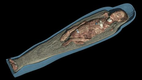 A scan of a mummy