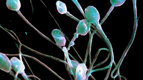Sperm (Science Photo Library)