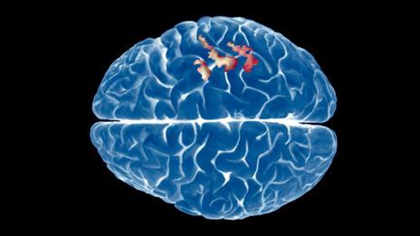 Brain (SPL)