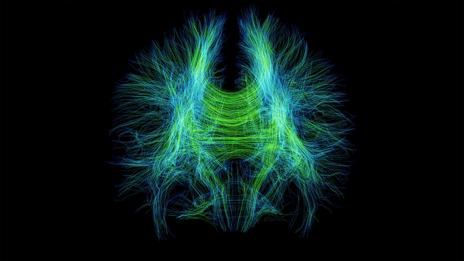 Brain fibres (Science Photo Library)