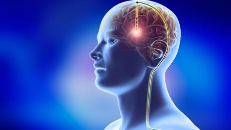 explain how neurons transmit information our The pns gathers information from our surroundings and envi- ronment   neurons transmit and receive information via an electrochemical mechanism   the arriving action potential leads to a defined amount (a quantum) of.