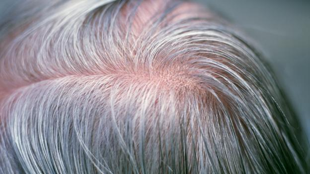 Can stress turn your hair grey overnight?