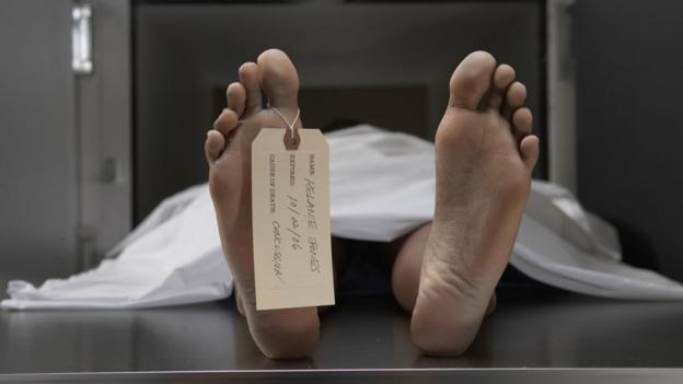 Cadaver on autopsy table (Copyright: Thinkstock)