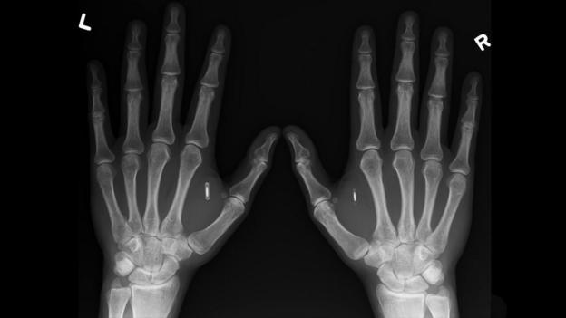 """Les puces RFID implantées sont de plus en plus vues comme """"cool"""", """"branchées"""" (sic) P01rx8sd"""