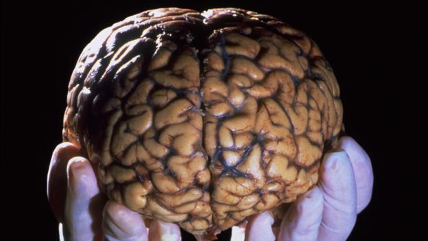How building a library of brains could save lives