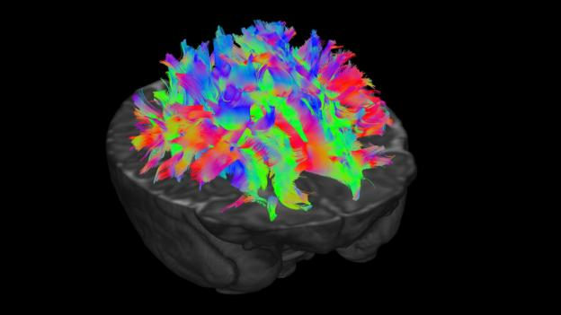 The different colours represent fibres travelling in different directions, so the scientists can pick apart which pathways connect which parts of the brain (Credit: dHCP)