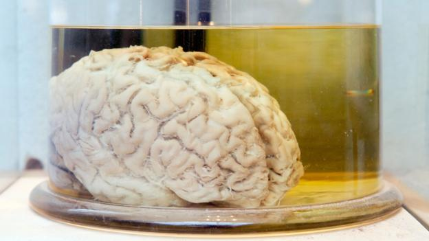The brain, humanity's secret weapon (Credit: Stefan Sollfors/Alamy Stock Photo)