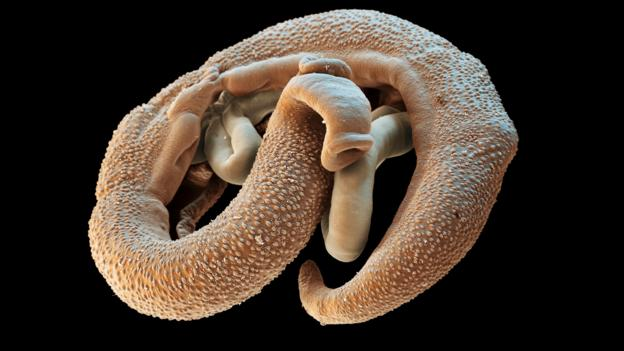 These worms spend their adult lives locked in a tight embrace (Credit: SEM/SPL)