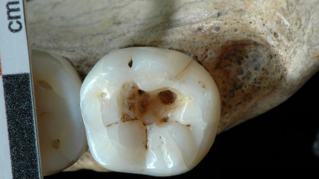 This man visited his prehistoric dentist 14,000 years ago (Credit: Stefano Benazzi)