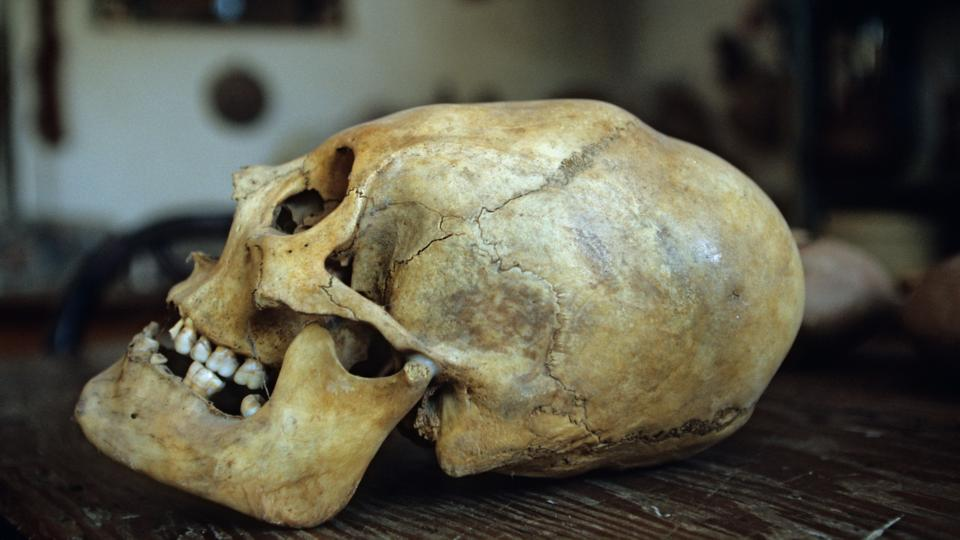Why early humans reshaped their children's skulls.