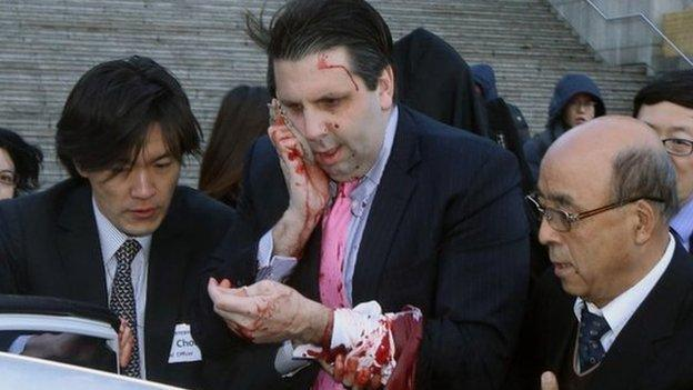 US ambassador to South Korea Mark Lippert is injured when a man slashes him with a razor in the capital Seoul.