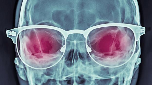 840feea09c0 BBC - Future - The secret history of X-ray specs