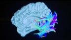 Scientists 'read dreams' using brain scans