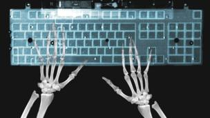 X-ray of hands on keyboard (Copyright: Thinkstock)